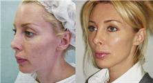 Подтяжка лица нитями  Нитевой лифтинг  Фото До и После