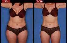 Оксисайз для похудения отзывы и результаты