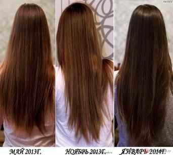 Может ли из за дисбактериоза выпадать волосы