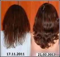 Пересадка волос в йошкар оле