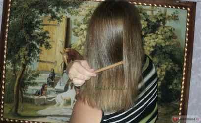 Выпадают волосы из-за повышенного андростендиона