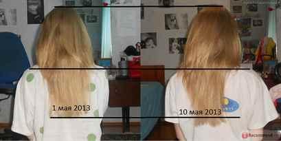 Для роста волос горчица отзывы