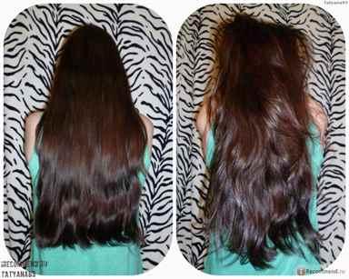 Маски для густоты и роста волос в домашних условиях отзывы применения Эксидерм