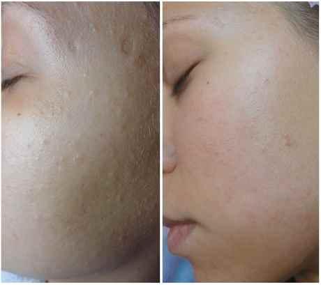 Ультразвуковой пилинг лица: фото до и после, что это такое ...: http://webdiana.ru/krasota/lico/3875-ultrazvukovoy-piling-lica.html