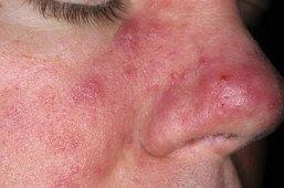 Розовые угри фото на лице