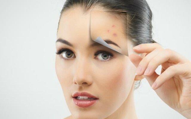 Витамины для кожи лица от прыщей