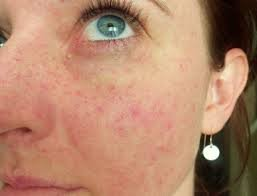 Сильная аллергия на лице