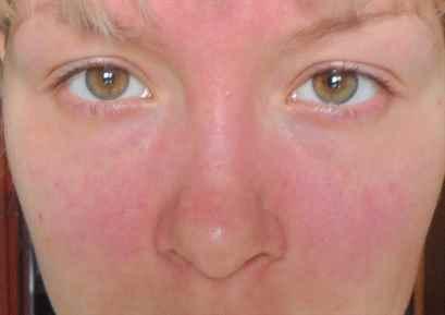 аллергия на холод на ногах симптомы