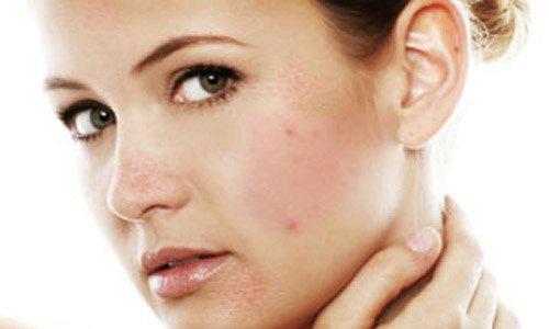 аллергия на холод на лице симптомы
