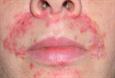 аллергия может давать температуру