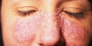 Аллергия на холод на лице