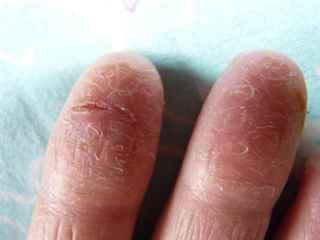 Народное лечение грибка на ногтях ног