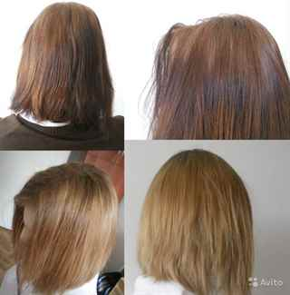 Чем лечить сеченые кончики волос