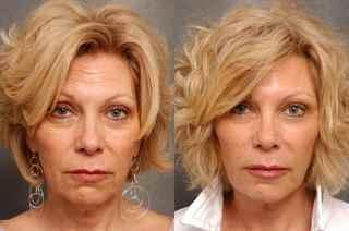 Результат от ботокса фото до и после