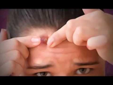 как правильно выдавить угри на лице видео