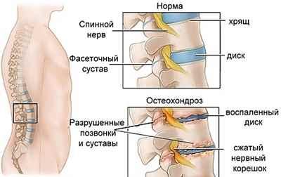 остеохондроз поясничного отдела позвоночника медикаментозное лечение
