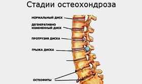 Боли в грудине посередине отдающая в спину