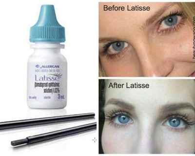Средство для роста ресниц Латиссе (Latisse)
