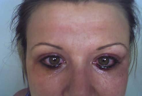 Перманентный макияж бровей последствие