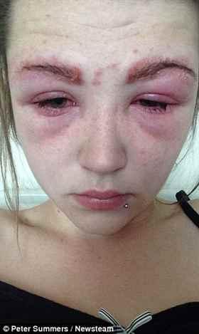 аллергия после хны
