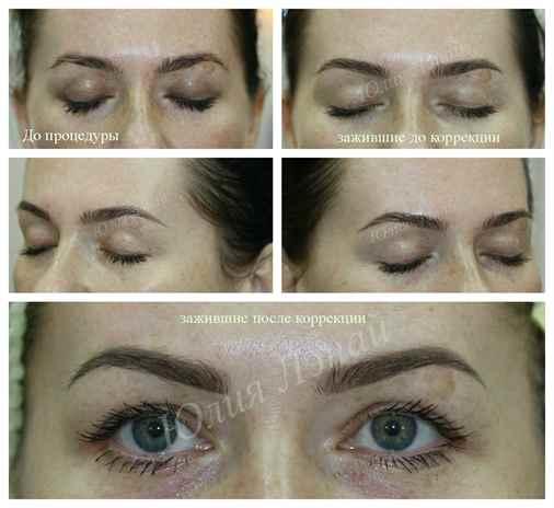 Фото машинок для перманентный макияж biotek