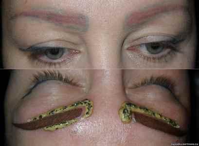 Удаление татуажа глаз ремувером