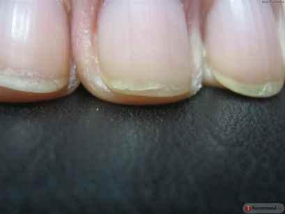 Почему отходят ногти по углам