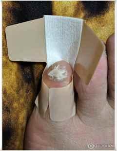 Нарывает палец на ноге возле ногтя лечение антибиотиками