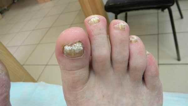 Бабушка грибок ногтей