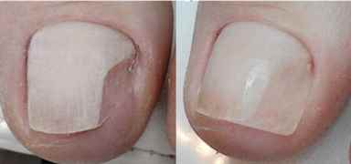 Коррекция вросшего ногтя акрилом