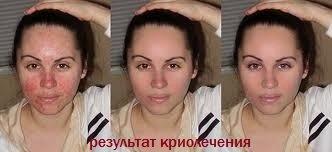 Жидкий азот в косметологии для лица: когда назначают процедуру, противопоказания, фото до и после