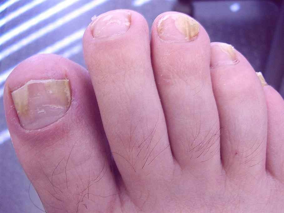 Может ли грибок на ногтях