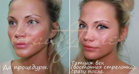 После перманентного макияжа век.фото