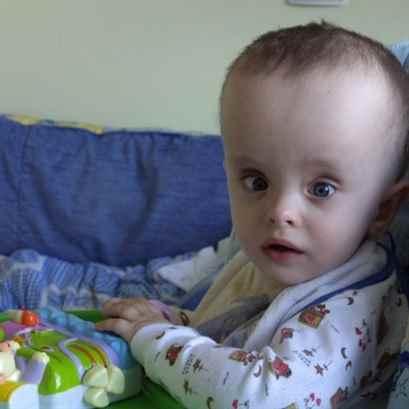 Голова ребенка норма и патология фото
