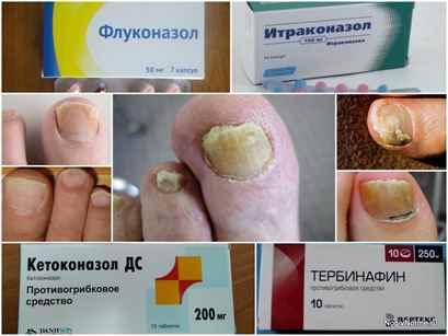 Дешевый препарат для лечения грибка ногтей