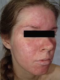Аллергия на фото