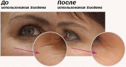 отзывы о кремах для глаз от морщин