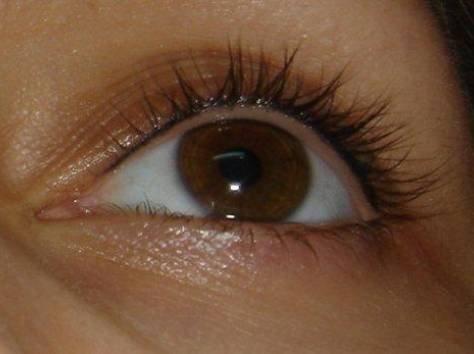 Аллергия на глазах : чем лечить, причины